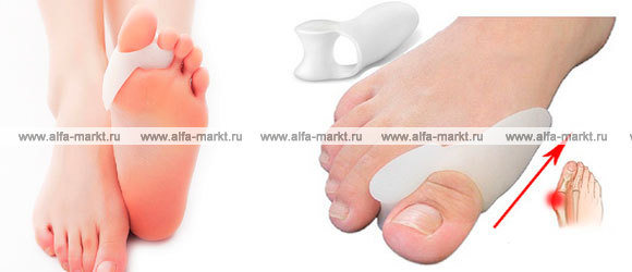 Вальгусный корректор для большого пальца как пользоваться